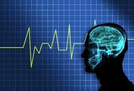 Brain technology